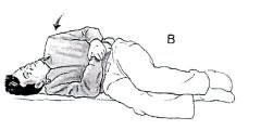 Benign positional vertigo exercise b