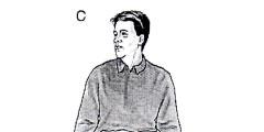 Benign positional vertigo exercise c