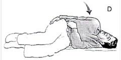 Benign positional vertigo exercise d